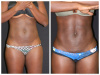 Palm Beach Liposuction