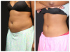 Coolsculpting West Palm Beach - 29 year old