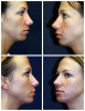 Open Rhinoplasty in West Palm Beach