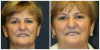 West Palm Beach Septoplasty