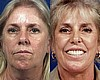 Blepharoplasty with Facelift and Laser Resurfacing