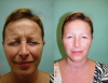 West Palm Beach Botox for Corrugator Muscle