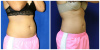 Coolsculpting Jupiter - 34 year old